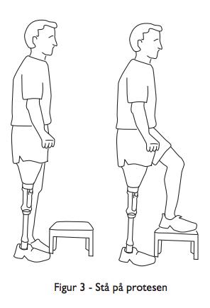 Stå på protesen - viktig trening for protesebrukere - balansetrening med protese