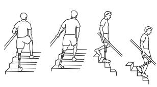 Å gå i trapper med protese - å gå i trapper er god trening - tren på å gå i trapper med protese